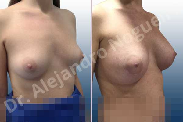 Asymmetric breasts,Empty breasts,Lateral breasts,Small breasts,Sunken chest,Too far apart wide cleavage breasts,Wide breasts,Anatomical shape,Lower hemi periareolar incision,Subfascial pocket plane - photo 5