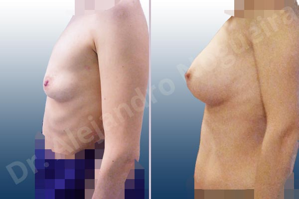 Empty breasts,Lateral breasts,Narrow breasts,Skinny breasts,Slightly saggy droopy breasts,Small breasts,Too far apart wide cleavage breasts,Anatomical shape,Lower hemi periareolar incision,Subfascial pocket plane - photo 2