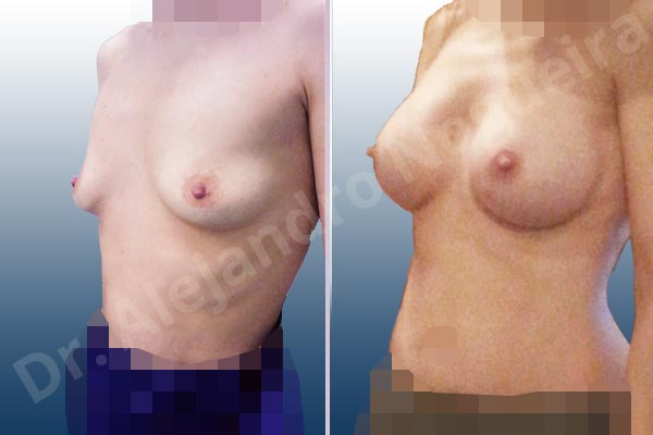 Empty breasts,Lateral breasts,Narrow breasts,Skinny breasts,Slightly saggy droopy breasts,Small breasts,Too far apart wide cleavage breasts,Anatomical shape,Lower hemi periareolar incision,Subfascial pocket plane - photo 3