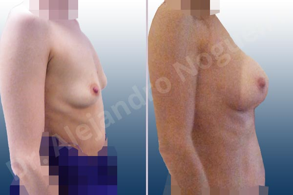 Empty breasts,Lateral breasts,Narrow breasts,Skinny breasts,Slightly saggy droopy breasts,Small breasts,Too far apart wide cleavage breasts,Anatomical shape,Lower hemi periareolar incision,Subfascial pocket plane - photo 4
