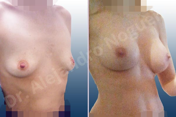 Empty breasts,Lateral breasts,Narrow breasts,Skinny breasts,Slightly saggy droopy breasts,Small breasts,Too far apart wide cleavage breasts,Anatomical shape,Lower hemi periareolar incision,Subfascial pocket plane - photo 5