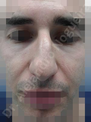 Bifid columella,Bifid tip,Boxy tip,Broad dorsum,Bulbous tip,Dorsum hump,Dorsum ridges,Droopy tip,Flat dorsum,Hanging columella,High dorsum,Jewish nose,Large alar cartilages,Large nose,Long upper lateral cartilages,Parenthesis tip deformity,Plunging tip deformity,Poorly defined tip,Rhomboid dorsum,Underprojected tip,Dorsum hump resection,Custom made tip graft,Dorsum plateau resection,Ear cartilage graft harvesting,Intercrural columella plasty sutures,Interdomal tip plasty sutures,Lateral cruras cephalic resection,Lateral cruras repositioning,Lateral cruras strut graft,Nasal bones osteotomies,Open approach incision,Shield tip graft,Tip defatting,Transdomal tip plasty scoring,Transdomal tip plasty sutures