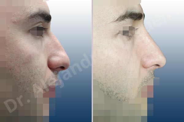 Before & After Case AEX3TTTZ