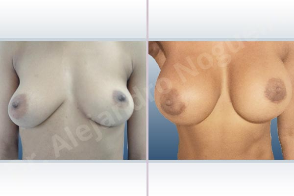 Asymmetric breasts,Cross eyed breasts,Empty breasts,Lateral breasts,Mildly saggy droopy breasts,Small breasts,Too far apart wide cleavage breasts,Anatomical shape,Extra large size,Lower hemi periareolar incision,Subfascial pocket plane - photo 1