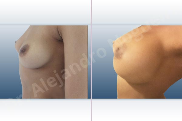 Asymmetric breasts,Cross eyed breasts,Empty breasts,Lateral breasts,Mildly saggy droopy breasts,Small breasts,Too far apart wide cleavage breasts,Anatomical shape,Extra large size,Lower hemi periareolar incision,Subfascial pocket plane - photo 2