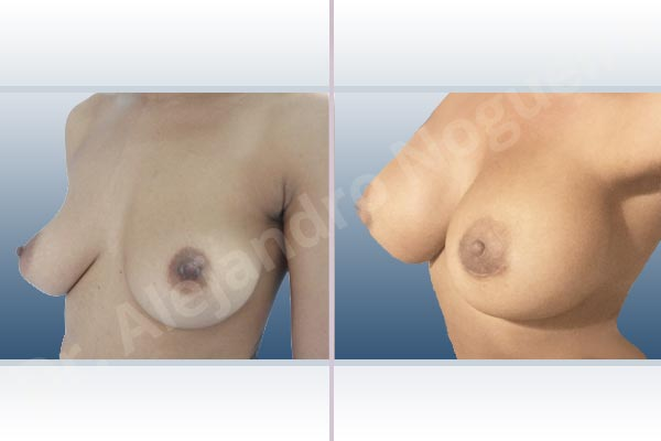 Asymmetric breasts,Cross eyed breasts,Empty breasts,Lateral breasts,Mildly saggy droopy breasts,Small breasts,Too far apart wide cleavage breasts,Anatomical shape,Extra large size,Lower hemi periareolar incision,Subfascial pocket plane - photo 3