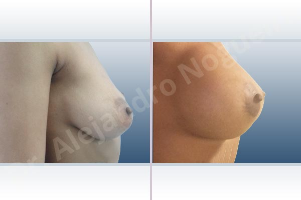 Asymmetric breasts,Cross eyed breasts,Empty breasts,Lateral breasts,Mildly saggy droopy breasts,Small breasts,Too far apart wide cleavage breasts,Anatomical shape,Extra large size,Lower hemi periareolar incision,Subfascial pocket plane - photo 4