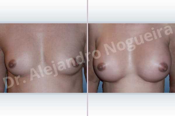 Asymmetric breasts,Narrow breasts,Small breasts,Anatomical shape,Inframammary incision,Subfascial pocket plane - photo 1