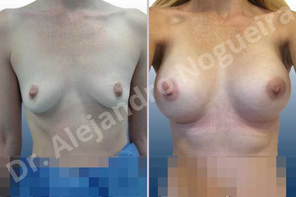 Empty breasts,Lateral breasts,Narrow breasts,Skinny breasts,Slightly saggy droopy breasts,Small breasts,Too far apart wide cleavage breasts,Anatomical shape,Lower hemi periareolar incision,Subfascial pocket plane - photo 1