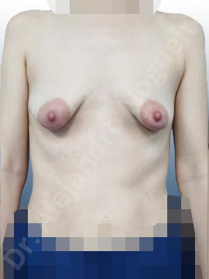 Asymmetric breasts,Empty breasts,Large areolas,Lateral breasts,Mildly saggy droopy breasts,Moderately saggy droopy breasts,Narrow breasts,Pendulous breasts,Skinny breasts,Small breasts,Sunken chest,Too far apart wide cleavage breasts,Tuberous breasts,Anatomical shape,Areola reduction,Circumareolar incision,Subfascial pocket plane,Tuberous mammoplasty