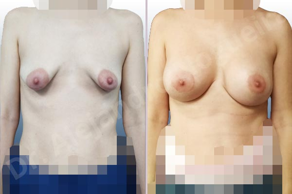 Asymmetric breasts,Empty breasts,Large areolas,Lateral breasts,Mildly saggy droopy breasts,Moderately saggy droopy breasts,Narrow breasts,Pendulous breasts,Skinny breasts,Small breasts,Sunken chest,Too far apart wide cleavage breasts,Tuberous breasts,Anatomical shape,Areola reduction,Circumareolar incision,Subfascial pocket plane,Tuberous mammoplasty - photo 1