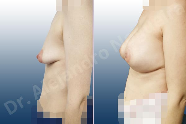 Asymmetric breasts,Empty breasts,Large areolas,Lateral breasts,Mildly saggy droopy breasts,Moderately saggy droopy breasts,Narrow breasts,Pendulous breasts,Skinny breasts,Small breasts,Sunken chest,Too far apart wide cleavage breasts,Tuberous breasts,Anatomical shape,Areola reduction,Circumareolar incision,Subfascial pocket plane,Tuberous mammoplasty - photo 2