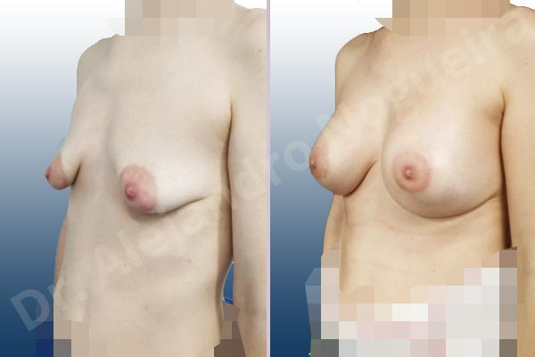 Asymmetric breasts,Empty breasts,Large areolas,Lateral breasts,Mildly saggy droopy breasts,Moderately saggy droopy breasts,Narrow breasts,Pendulous breasts,Skinny breasts,Small breasts,Sunken chest,Too far apart wide cleavage breasts,Tuberous breasts,Anatomical shape,Areola reduction,Circumareolar incision,Subfascial pocket plane,Tuberous mammoplasty - photo 3