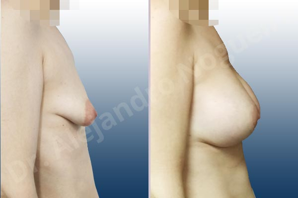 Asymmetric breasts,Empty breasts,Large areolas,Lateral breasts,Mildly saggy droopy breasts,Moderately saggy droopy breasts,Narrow breasts,Pendulous breasts,Skinny breasts,Small breasts,Sunken chest,Too far apart wide cleavage breasts,Tuberous breasts,Anatomical shape,Areola reduction,Circumareolar incision,Subfascial pocket plane,Tuberous mammoplasty - photo 4