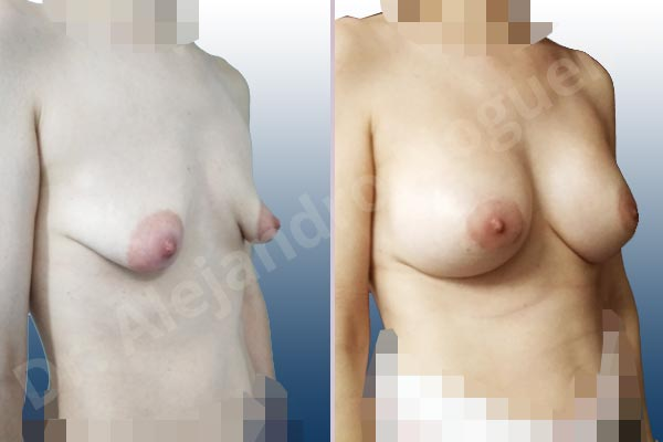 Asymmetric breasts,Empty breasts,Large areolas,Lateral breasts,Mildly saggy droopy breasts,Moderately saggy droopy breasts,Narrow breasts,Pendulous breasts,Skinny breasts,Small breasts,Sunken chest,Too far apart wide cleavage breasts,Tuberous breasts,Anatomical shape,Areola reduction,Circumareolar incision,Subfascial pocket plane,Tuberous mammoplasty - photo 5