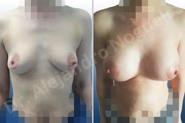 Cross eyed breasts,Empty breasts,Lateral breasts,Mildly saggy droopy breasts,Narrow breasts,Pigeon chest,Skinny breasts,Small breasts,Too far apart wide cleavage breasts,Lower hemi periareolar incision,Round shape,Subfascial pocket plane - photo 1
