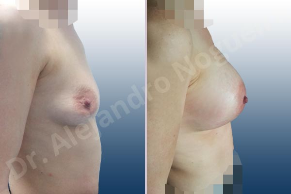 Cross eyed breasts,Empty breasts,Lateral breasts,Mildly saggy droopy breasts,Narrow breasts,Pigeon chest,Skinny breasts,Small breasts,Too far apart wide cleavage breasts,Lower hemi periareolar incision,Round shape,Subfascial pocket plane - photo 4