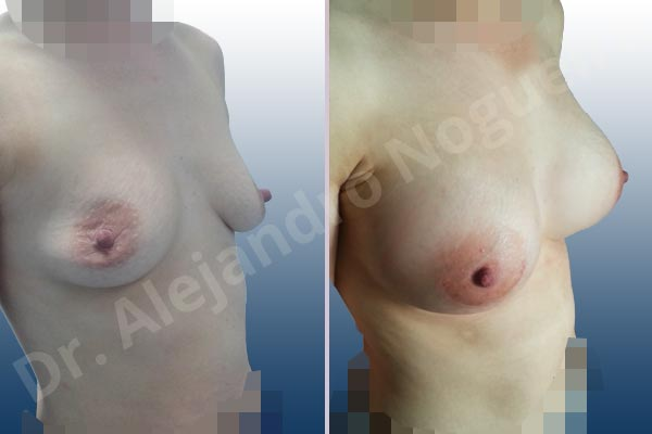 Cross eyed breasts,Empty breasts,Lateral breasts,Mildly saggy droopy breasts,Narrow breasts,Pigeon chest,Skinny breasts,Small breasts,Too far apart wide cleavage breasts,Lower hemi periareolar incision,Round shape,Subfascial pocket plane - photo 5