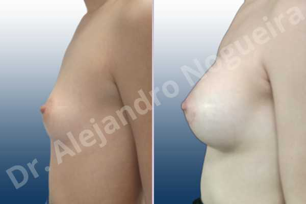 Asymmetric breasts,Empty breasts,Lateral breasts,Small breasts,Too far apart wide cleavage breasts,Anatomical shape,Lower hemi periareolar incision,Subfascial pocket plane - photo 2