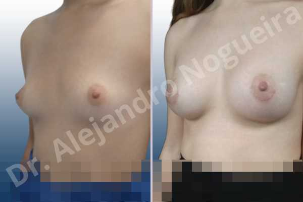 Asymmetric breasts,Empty breasts,Lateral breasts,Small breasts,Too far apart wide cleavage breasts,Anatomical shape,Lower hemi periareolar incision,Subfascial pocket plane - photo 3