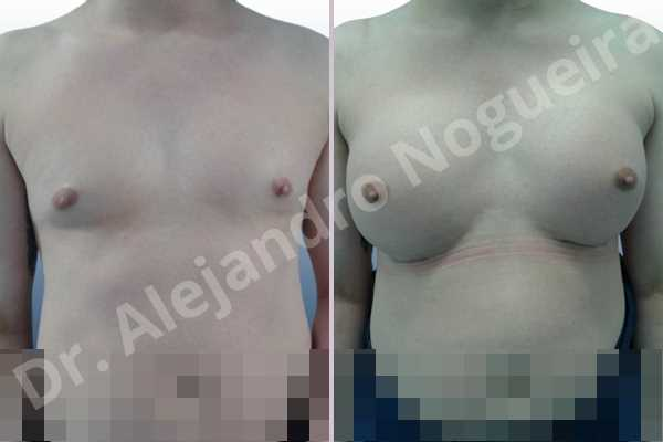 Cross eyed breasts,Empty breasts,Lateral breasts,Small breasts,Too far apart wide cleavage breasts,Transgender breasts,Wide breasts,Inframammary incision,Round shape,Subfascial pocket plane - photo 1
