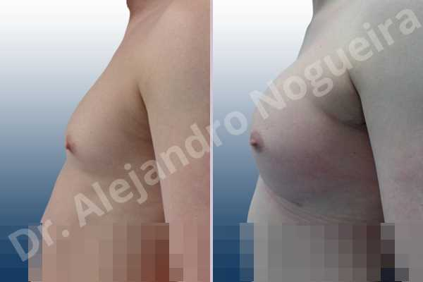 Cross eyed breasts,Empty breasts,Lateral breasts,Small breasts,Too far apart wide cleavage breasts,Transgender breasts,Wide breasts,Inframammary incision,Round shape,Subfascial pocket plane - photo 2