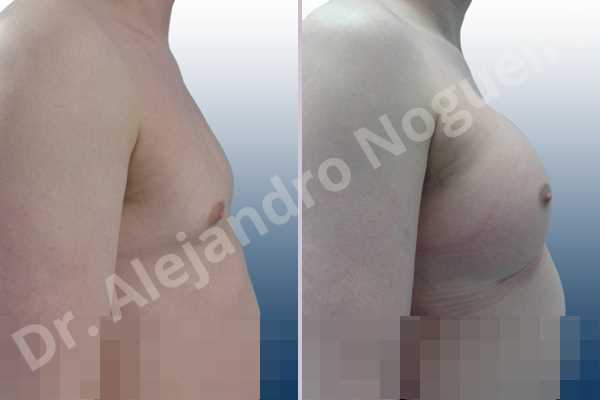 Cross eyed breasts,Empty breasts,Lateral breasts,Small breasts,Too far apart wide cleavage breasts,Transgender breasts,Wide breasts,Inframammary incision,Round shape,Subfascial pocket plane - photo 4