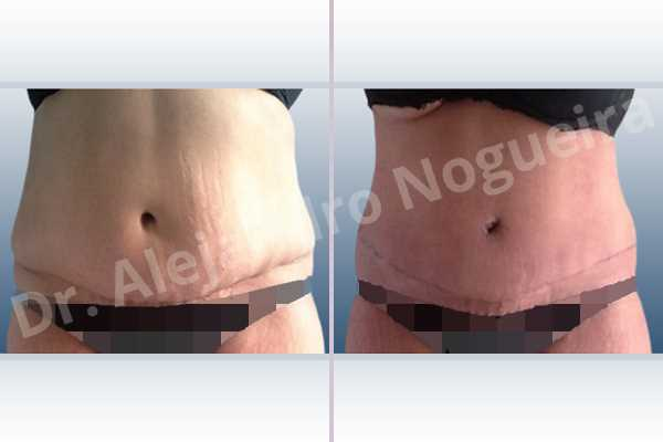 Displaced malpositioned scars,Failed tummy tuck,Saggy abdomen,Weak abdomen muscles,Excisional scar revision,Panniculectomy,Standard abdominoplasty - photo 1