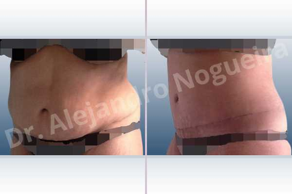 Displaced malpositioned scars,Failed tummy tuck,Saggy abdomen,Weak abdomen muscles,Excisional scar revision,Panniculectomy,Standard abdominoplasty - photo 3
