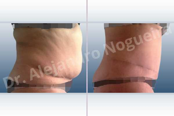 Displaced malpositioned scars,Failed tummy tuck,Saggy abdomen,Weak abdomen muscles,Excisional scar revision,Panniculectomy,Standard abdominoplasty - photo 4