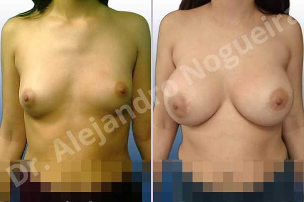 Asymmetric breasts,Empty breasts,Lateral breasts,Skinny breasts,Small breasts,Too far apart wide cleavage breasts,Extra large size,Lower hemi periareolar incision,Round shape,Dual plane pocket - photo 1