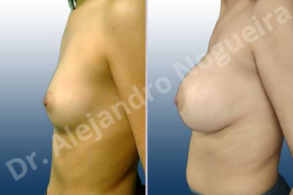 Asymmetric breasts,Empty breasts,Lateral breasts,Skinny breasts,Small breasts,Too far apart wide cleavage breasts,Extra large size,Lower hemi periareolar incision,Round shape,Dual plane pocket - photo 2