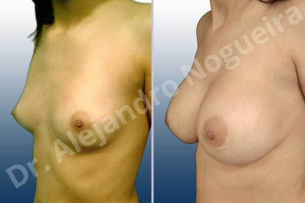 Asymmetric breasts,Empty breasts,Lateral breasts,Skinny breasts,Small breasts,Too far apart wide cleavage breasts,Extra large size,Lower hemi periareolar incision,Round shape,Dual plane pocket - photo 3