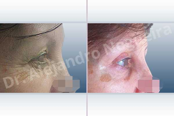 Baggy lower eyelids,Saggy upper eyelids,Upper eyelids ptosis,Lower eyelid fat bags resection,Transconjunctival approach incision,Upper eyelid skin and muscle resection - photo 4
