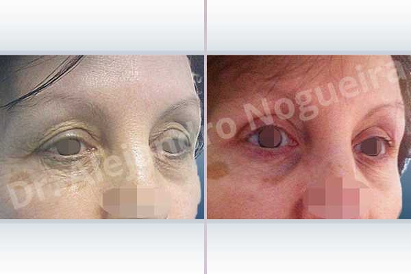 Baggy lower eyelids,Saggy upper eyelids,Upper eyelids ptosis,Lower eyelid fat bags resection,Transconjunctival approach incision,Upper eyelid skin and muscle resection - photo 5