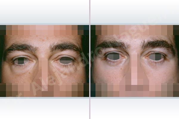 Before & After Case BDK6ZU9U