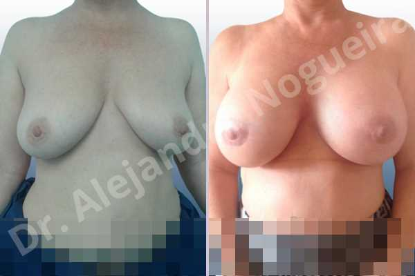 Empty breasts,Lateral breasts,Mildly large breasts,Moderately saggy droopy breasts,Slightly large breasts,Too far apart wide cleavage breasts,Wide breasts,Anatomical shape,Extra large size,Lower hemi periareolar incision,Subfascial pocket plane - photo 1