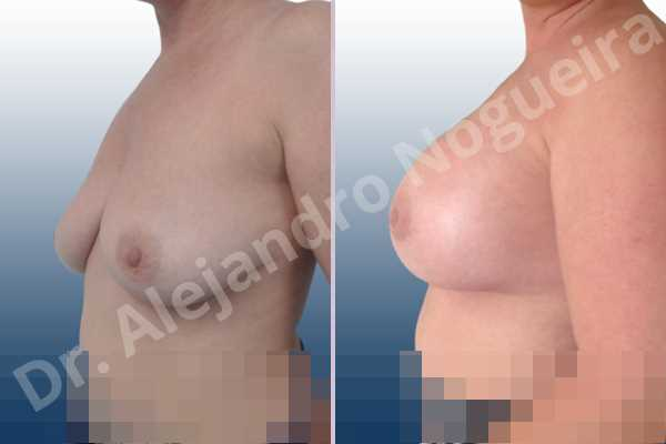 Empty breasts,Lateral breasts,Mildly large breasts,Moderately saggy droopy breasts,Slightly large breasts,Too far apart wide cleavage breasts,Wide breasts,Anatomical shape,Extra large size,Lower hemi periareolar incision,Subfascial pocket plane - photo 2