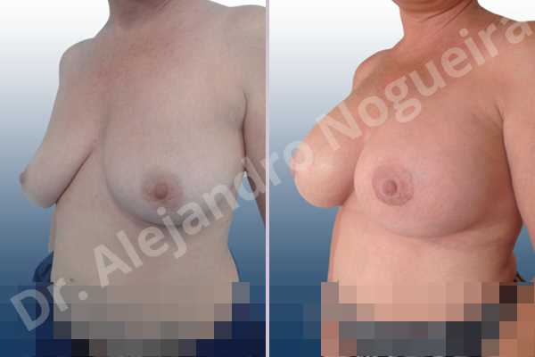 Empty breasts,Lateral breasts,Mildly large breasts,Moderately saggy droopy breasts,Slightly large breasts,Too far apart wide cleavage breasts,Wide breasts,Anatomical shape,Extra large size,Lower hemi periareolar incision,Subfascial pocket plane - photo 3