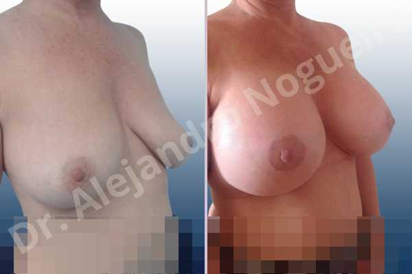 Empty breasts,Lateral breasts,Mildly large breasts,Moderately saggy droopy breasts,Slightly large breasts,Too far apart wide cleavage breasts,Wide breasts,Anatomical shape,Extra large size,Lower hemi periareolar incision,Subfascial pocket plane - photo 5