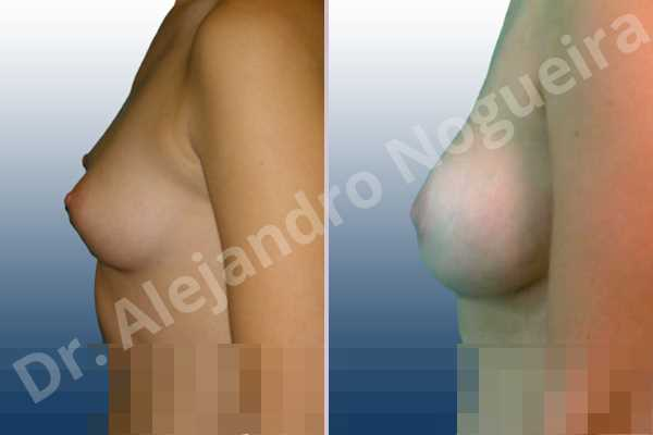 Lateral breasts,Small breasts,Too far apart wide cleavage breasts,Lower hemi periareolar incision,Round shape,Subfascial pocket plane - photo 2