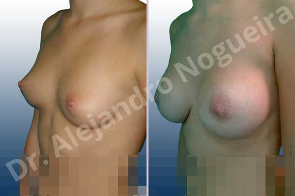 Lateral breasts,Small breasts,Too far apart wide cleavage breasts,Lower hemi periareolar incision,Round shape,Subfascial pocket plane - photo 3