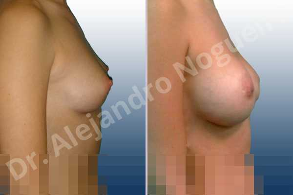 Lateral breasts,Small breasts,Too far apart wide cleavage breasts,Lower hemi periareolar incision,Round shape,Subfascial pocket plane - photo 4
