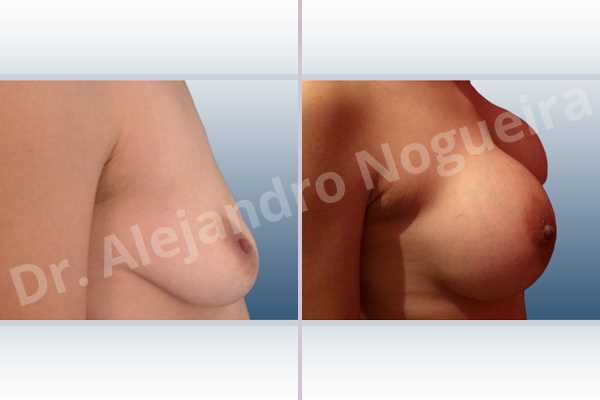 Asymmetric breasts,Empty breasts,Moderately saggy droopy breasts,Narrow breasts,Pendulous breasts,Pigeon chest,Small breasts,Too far apart wide cleavage breasts,Extra large size,Lower hemi periareolar incision,Round shape,Subfascial pocket plane - photo 4