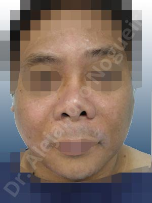 Alar rim retraction,Angled dorsum,Asian nose,Asymmetric nose,Asymmetric tip,Broad nose,Bulbous tip,Congenital nose,Crooked nose,Crooked tip,Displaced malpositioned scars,Dorsum graft malposition displacement,Dorsum ridges,Dynamic alar flaring,Failed osteotomies,Flat dorsum,Hypertrophic scars,Irregular dorsum,Large nostrils,Large sills,Low dorsum,Low radix,Narrow dorsum,Nasal fibrosis,Nasal implant extrusion,Overrotated tip,Poorly defined tip,Poorly supported tip,Short nose,Short septum,Short upper lateral cartilages,Small alar cartilages,Small nose,Step off deformity,Sunken columella,Sunken scars,Sunken supratip,Thick alar rim,Thick skin nose,Tip bossae,Tombstone dorsum deformity,Underprojected tip,Small chin,Weak chin,Columella lengthening,Columella strut graft,Custom made tip graft,Dorsum regularization,Dorsum replacement graft,Ear cartilage graft harvesting,Excisional scar revision,Extended columella strut graft,Intercrural columella plasty sutures,Interdomal tip plasty sutures,Lateral cruras batten graft,Lateral cruras caudal extension graft,Lateral cruras custom made graft,Lateral cruras lengthening graft,Lateral cruras plasty sutures,Lateral cruras replacement graft,Lateral cruras repositioning,Medial cruras custom made graft,Medial cruras lengthening graft,Medial cruras replacement graft,Onlay columella graft,Onlay dorsum graft,Onlay radix graft,Onlay supratip graft,Onlay tip graft,Open approach incision,Rib cartilage graft harvesting,Septocolumella graft,Septum caudal extension graft,Septum replacement graft,Shield tip graft,Temporalis fascia graft harvesting,Tip defatting,Tip replacement graft,Tongue in groove columella setback,Transdomal tip plasty scoring,Transdomal tip plasty sutures,Triangular cartilages caudal extension graft,Hip bone graft harvesting,Oblique chin osteotomy,Osseous chin advancement,Two dimensional genioplasty,Vertical osseous chin grafting