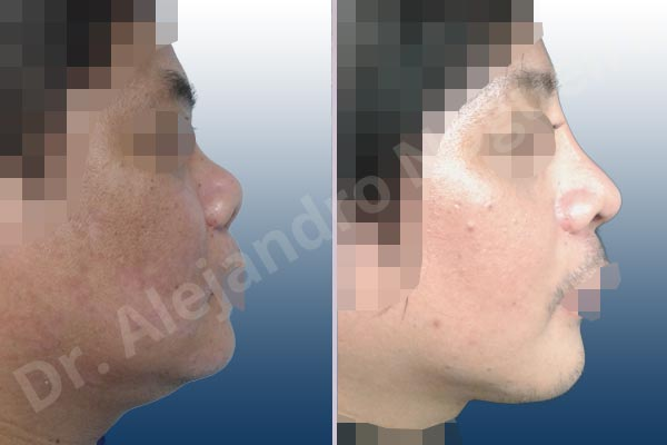 Before & After Case BMKNJEM4