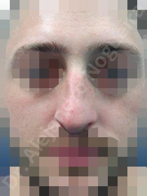 Alar rim retraction,Asymmetric nose,Asymmetric tip,Bifid columella,Bifid tip,Broad dorsum,Dorsum hump,Dorsum ridges,Droopy tip,Dynamic alar flaring,Jewish nose,Large alar cartilages,Parenthesis tip deformity,Pinched middle vault,Plunging tip deformity,Polly beak deformity,Poorly supported tip,Rhomboid dorsum,Thin skin nose,Underprojected tip,Columella lengthening,Columella strut graft,Dorsum hump resection,Dorsum plateau resection,Extended columella strut graft,Intercrural columella plasty sutures,Interdomal tip plasty sutures,Lateral cruras batten graft,Lateral cruras caudal extension graft,Lateral cruras cephalic resection,Lateral cruras custom made graft,Lateral cruras repositioning,Nasal bones osteotomies,Open approach incision,Septal cartilage graft harvesting,Spreader graft,Tip defatting,Transdomal tip plasty scoring,Transdomal tip plasty sutures