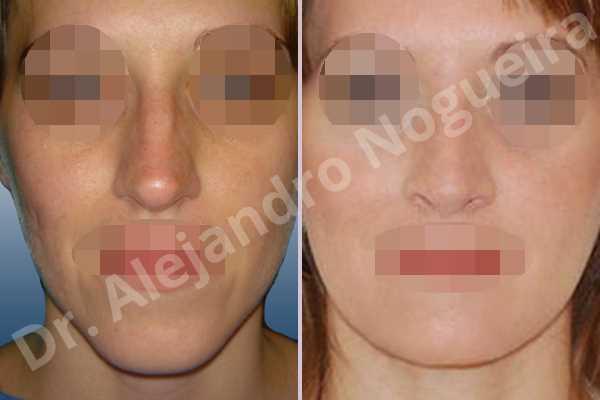 Before & After Case BYWETZ3J