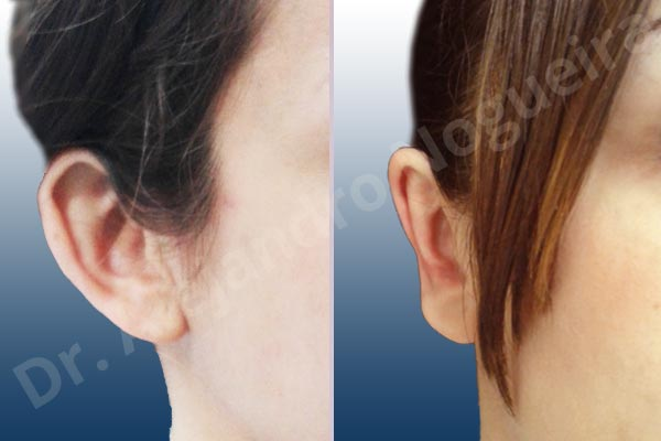 Before & After Case BYXFPUR6