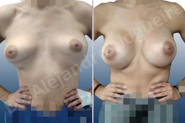Breast implants animation muscle flex deformity,Breast implants bottoming out,Breast implants displacement malposition,Breast implants double bubble deformity,Breast implants excessive movement,Breast implants lateral slide,Breast implants side boob,Empty breasts,Too far apart wide cleavage breast implants,Too narrow breast implants,Wide breasts,Anatomical shape,Capsulectomy,Extra large size,Internal bra capsulorrhaphy,Lower hemi periareolar incision,Subfascial pocket plane - photo 2
